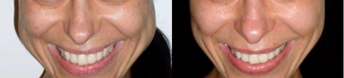 Anti-Wrinkle Injections - Jaw-line reshaping