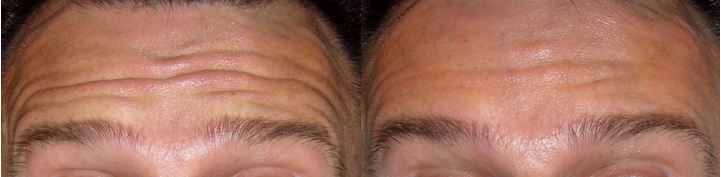 Anti-Wrinkle Injections - Reduction of dynamic lines