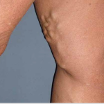Dr Lim varicose veins