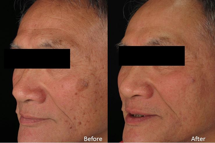 Level 3 laser resurfacing (BBL + PF+ spot contour )