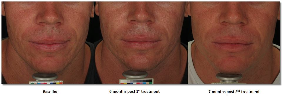 Acne scar treatment - uRepublic
