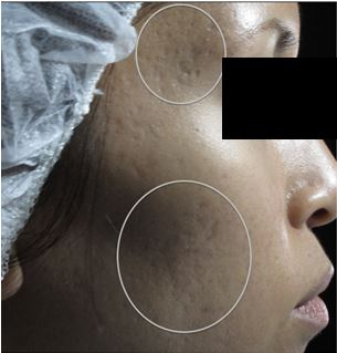 Acne Scar Repair