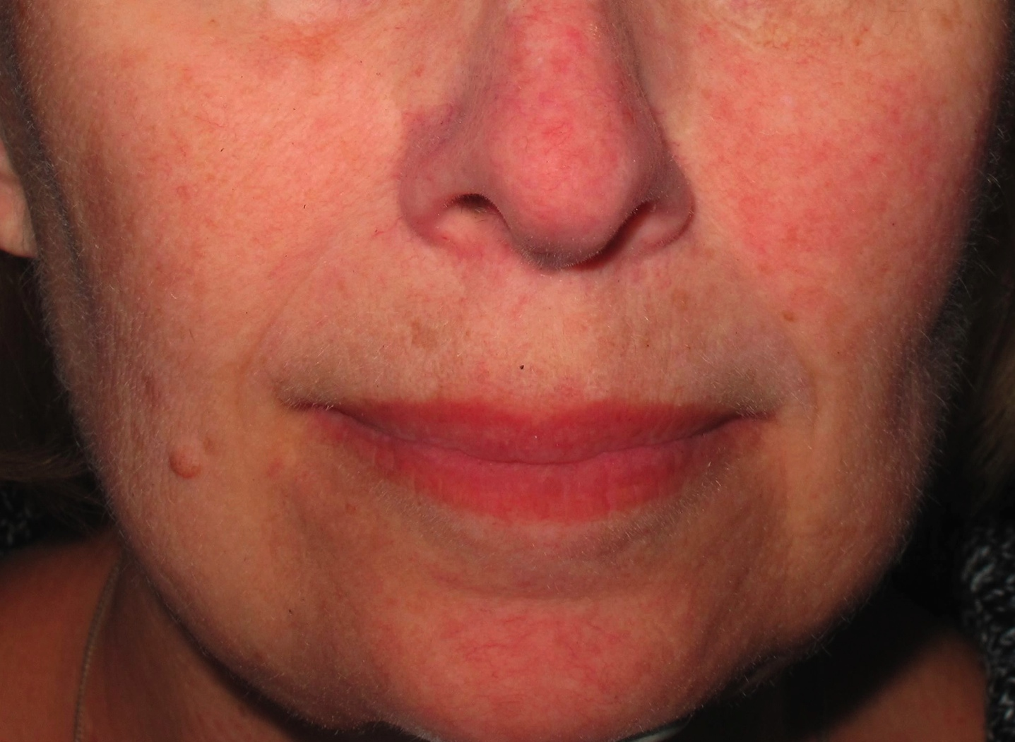 Treatment for redness