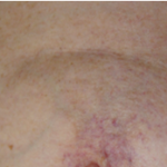 Capillaries from radiotherapy - After 1 treatment
