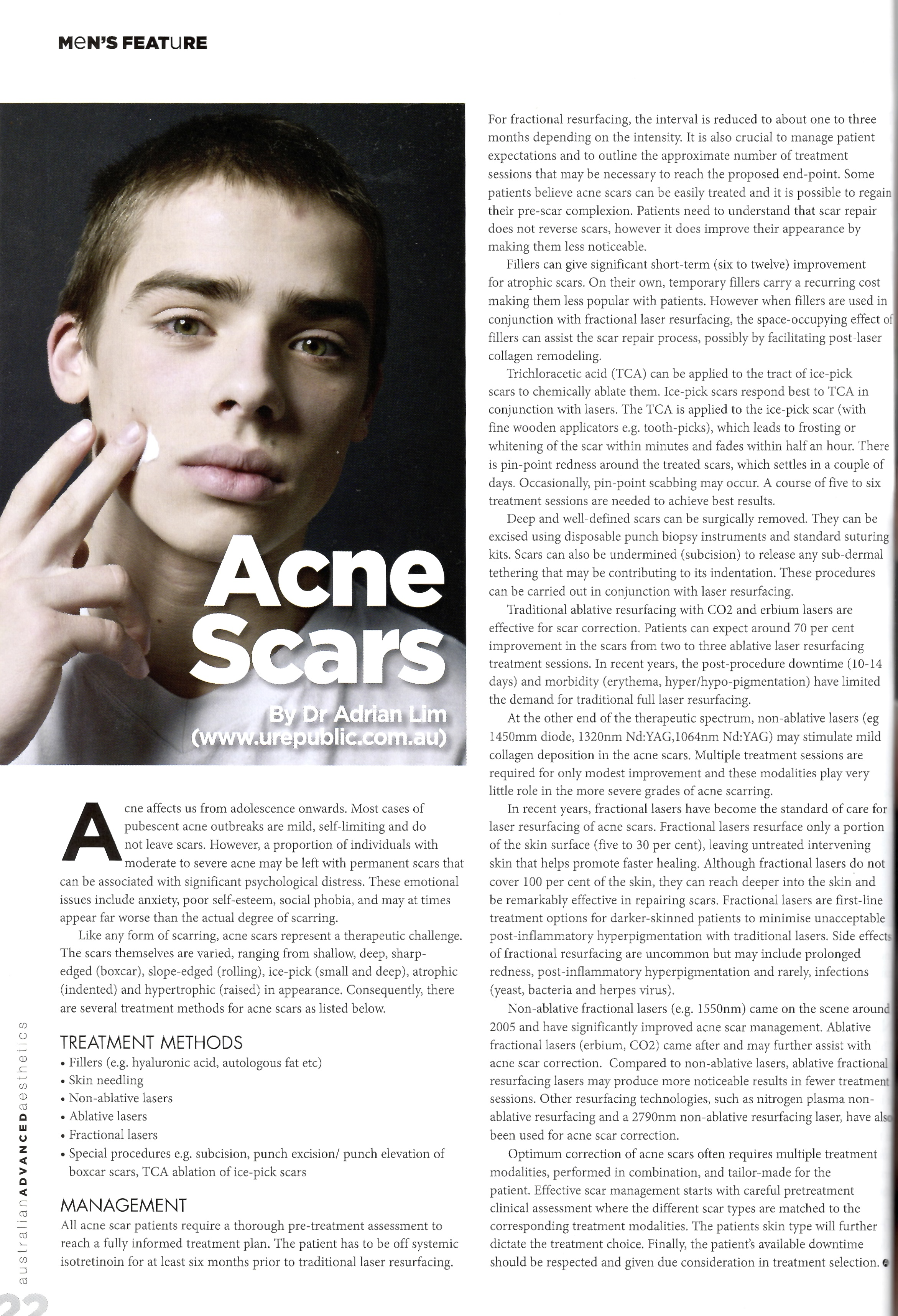 Acne Scars Urepublic Cosmetic Dermatology Amp Veins