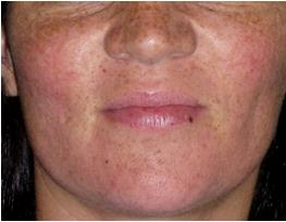 Freckles - Pigmentation