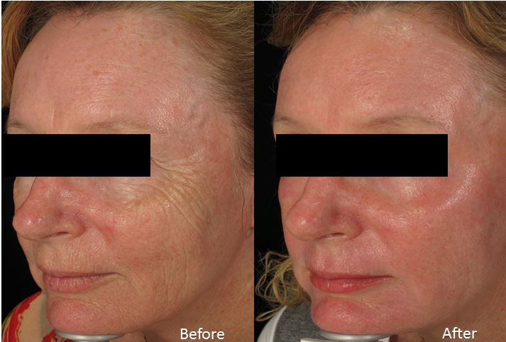 Level 7 laser peel (Contour + MLP+CO2) Before + After