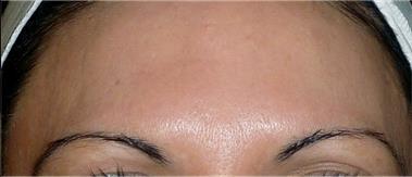 Melasma - Pigmentation
