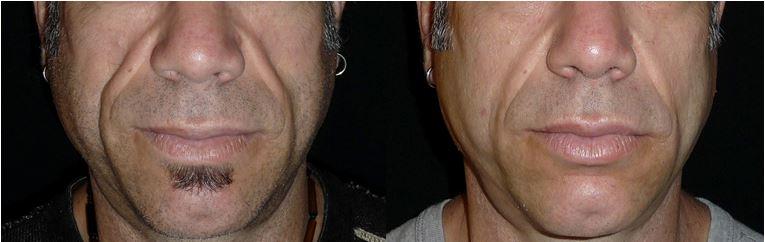 Mid-facial volume loss