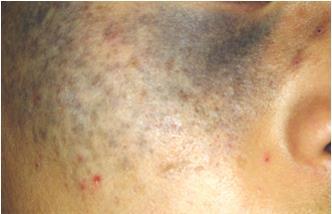 Q Switch Laser Pigmentation Amp Birthmark Treatments