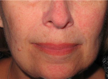 Rosacea - After treatment