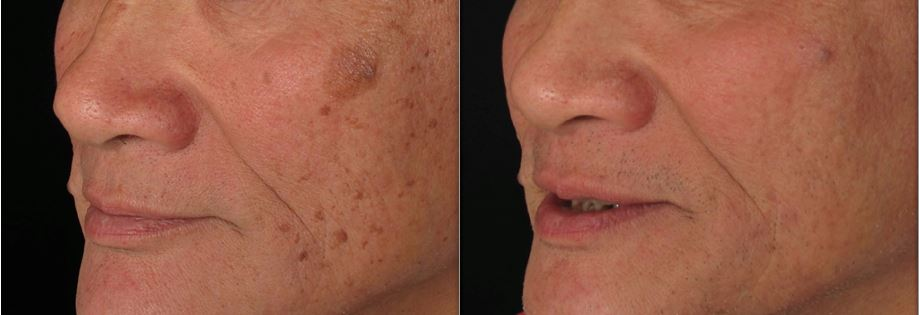 Sun Spots - Before & After Treatment