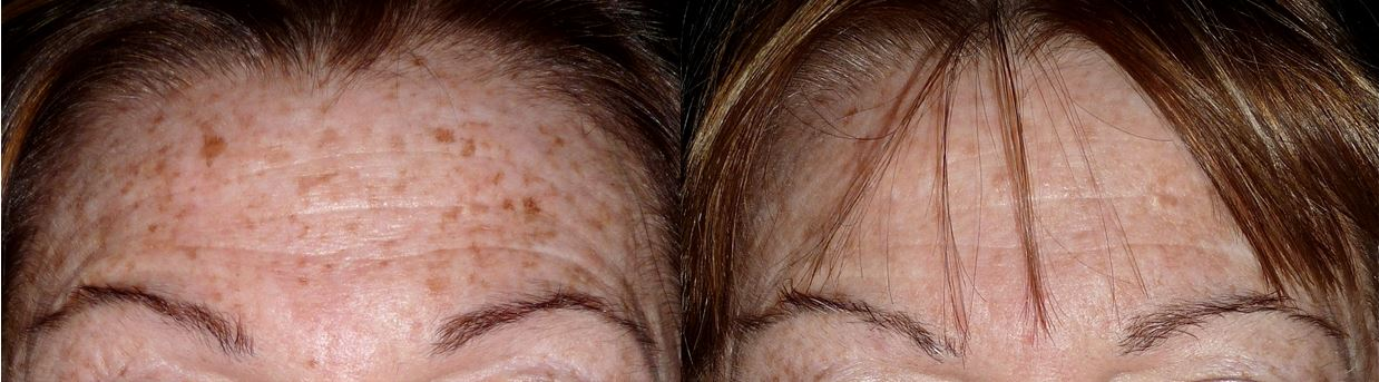 Sun Freckles - Before & After Treatment